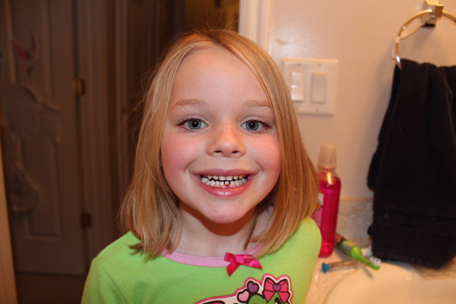 Sarah about to lose her first tooth